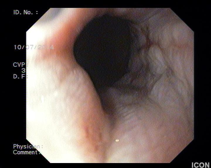 Γαστρικός δακτύλιος: διάβρωση και διάτρηση