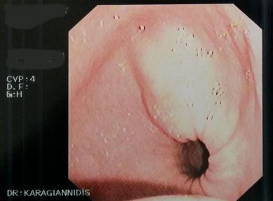 λίπωμα στομάχου 3