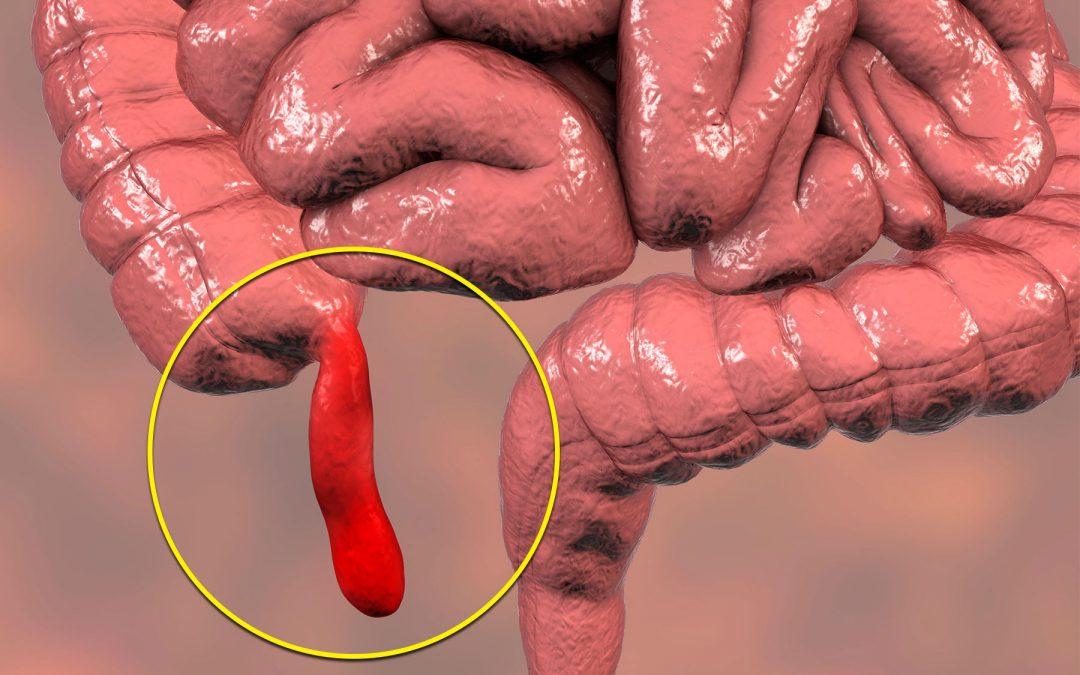 σκωληκοειδίτιδα: αίτια λανθασμένης διάγνωσης